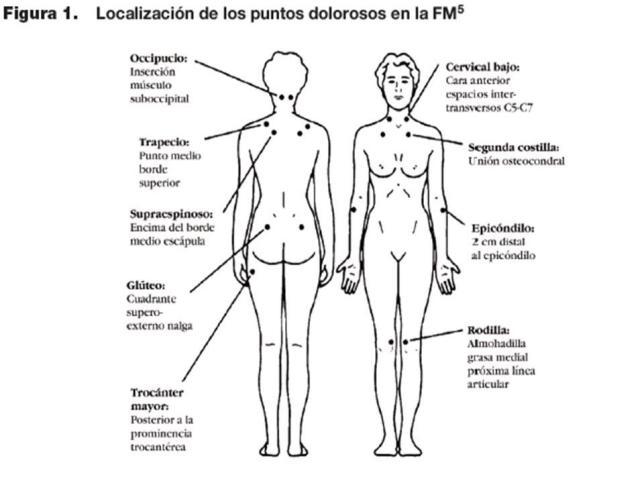 consecuecias de la fibromialgia, receptores del dolor