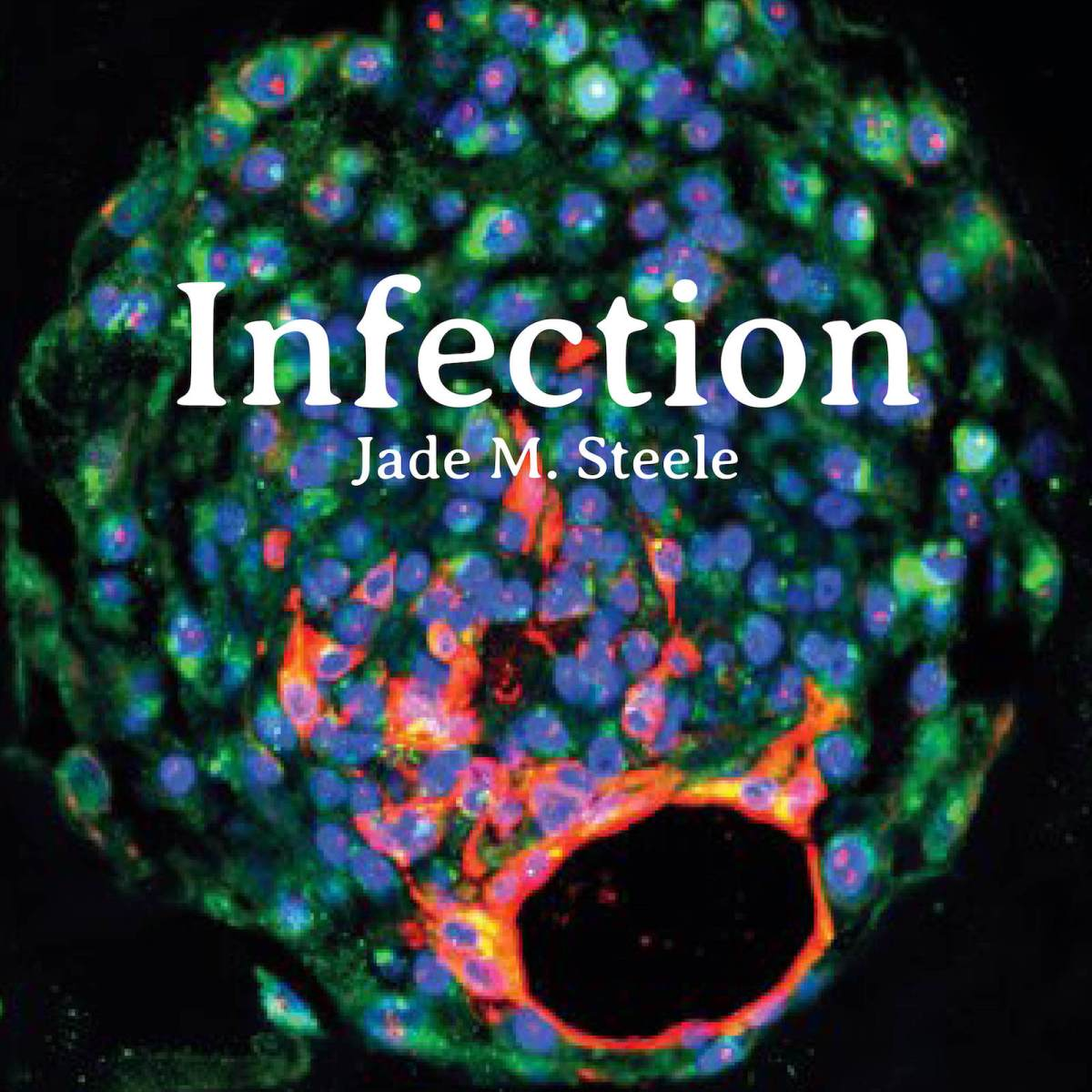 Infection Jade M Steele