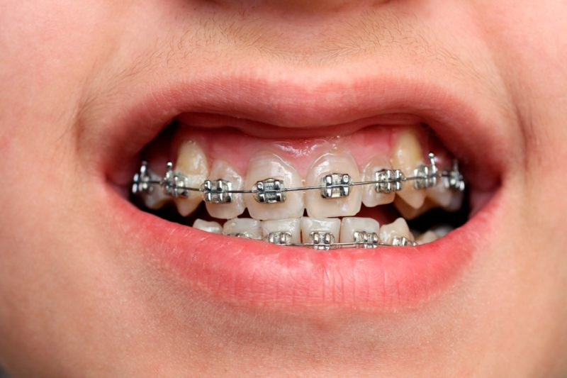 How do Braces Work