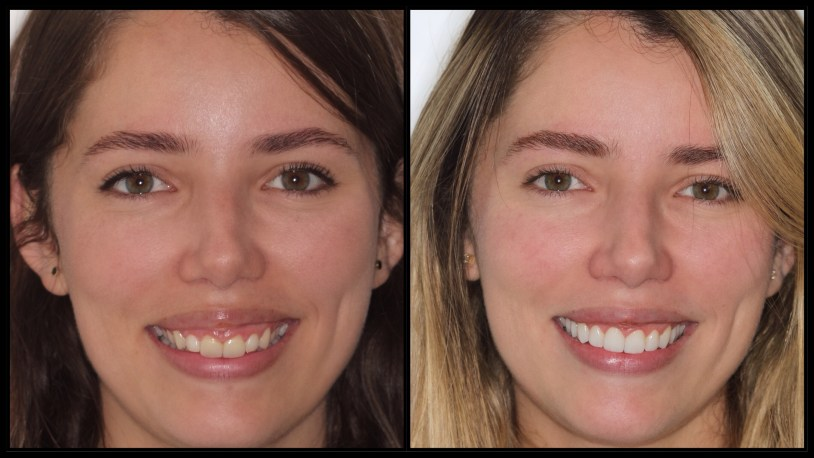 Antes e depois da gengivectomia e das lentes de contato de Raira Venturieri
