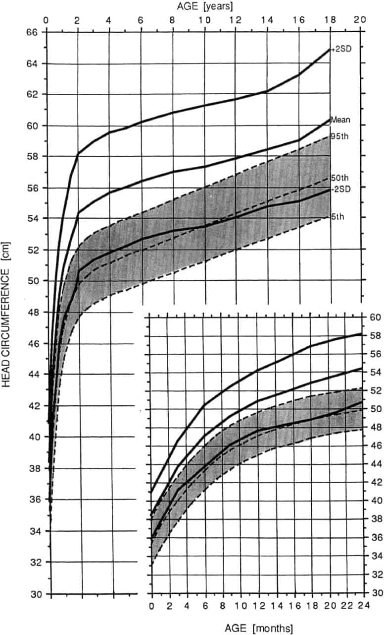 Achondroplasia growth and motor milestones charts delicious little head circumference growth chart in achondroplasia female geenschuldenfo Image collections