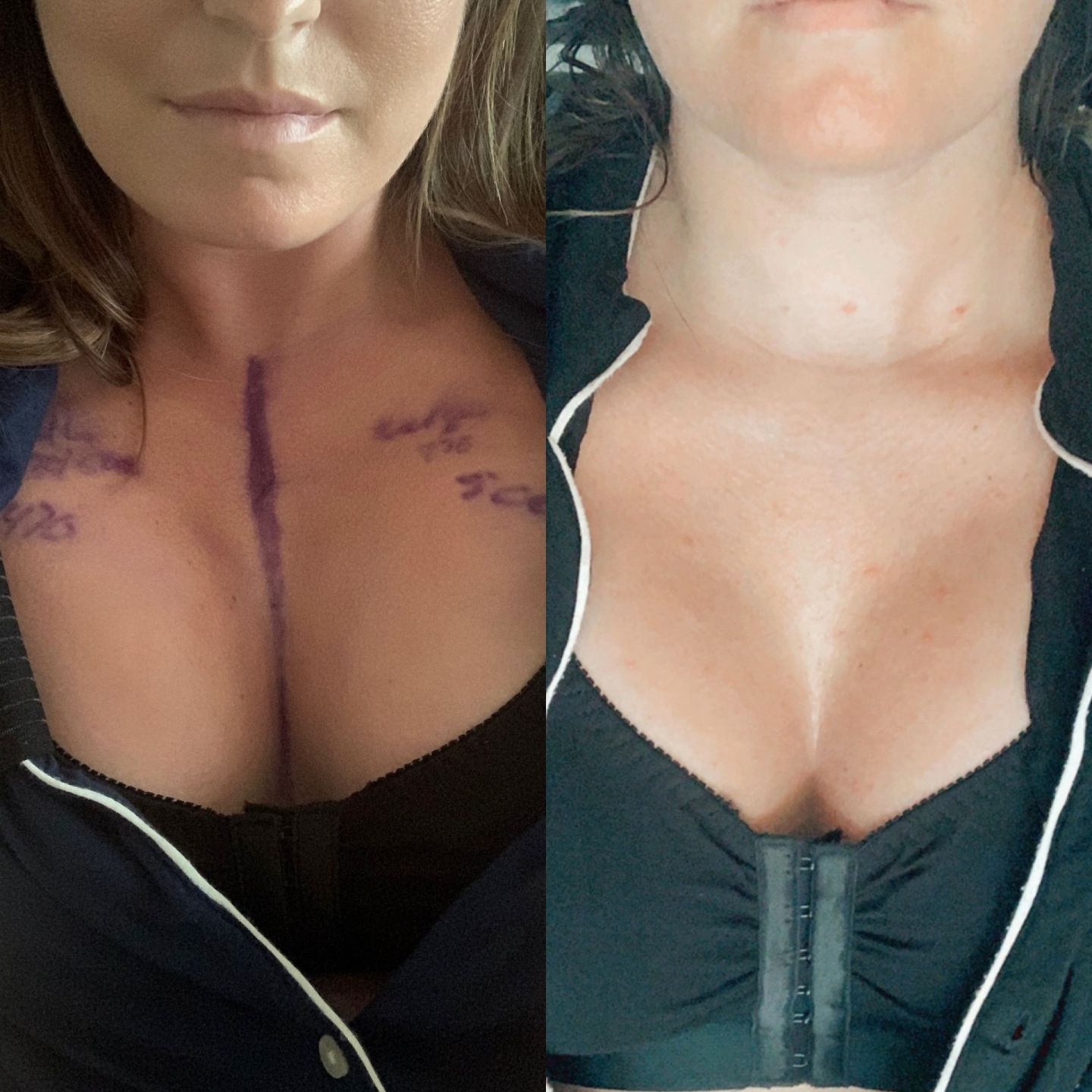breast augmentation surgery tips, boob job tips and recovery tips after boob job.