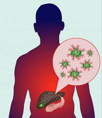 Types of Hepatitis and Homeopathy Treatment 1