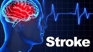 Things You Should Know About Stroke 1