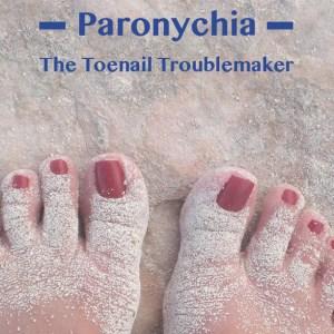 Paronychia: The toenail troublemaker - Delray Beach Podiatry