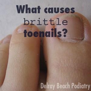 Get help for brittle toenails at Delray Beach Podiatry. [Image via MorgueFile.com]