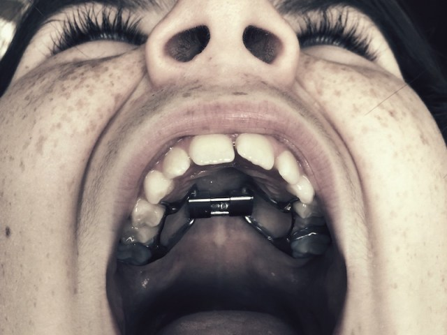 The Dangers of Do-It-Yourself Dental Work | Delta Dental of