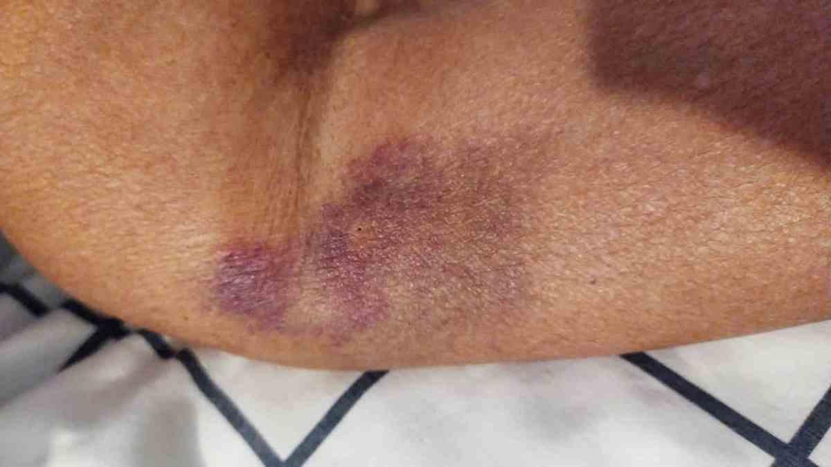 Brusied arm