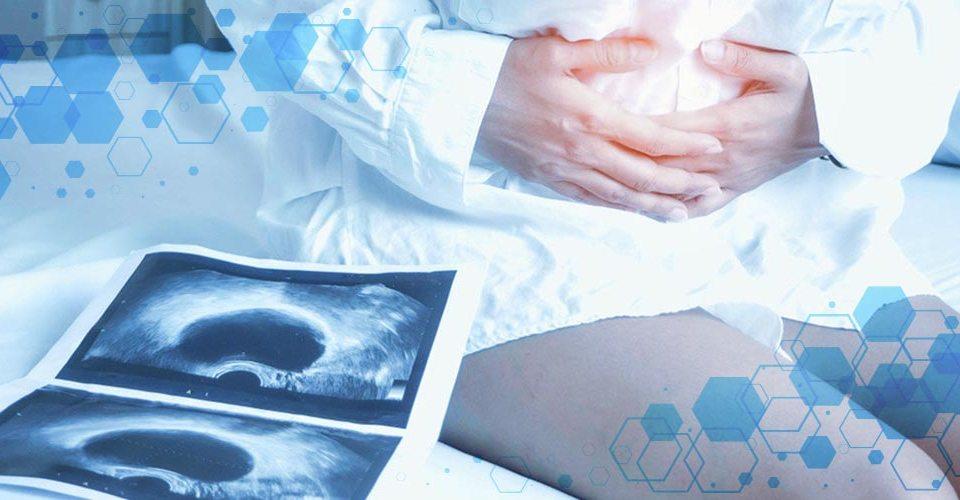 DEMESA   Endometriosis causas y consecuencias en la salud reproductiva