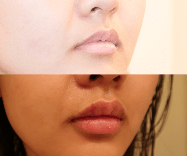 Juvederm Ultra XC - Skyler Soares - Affiliated Dermatology - Demi Bang