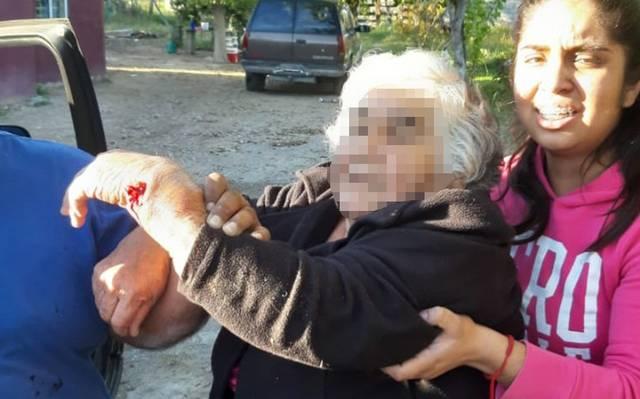 Anciana fallece después de ser operada