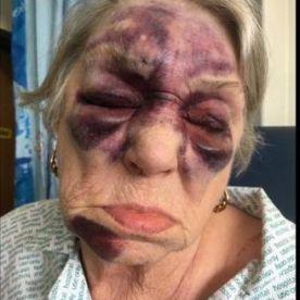 Meallmore resident bruised
