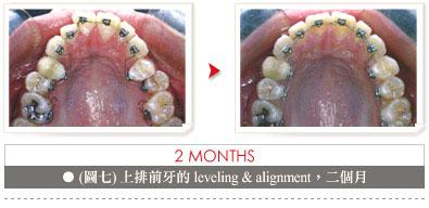 orthodontic_no01_case02