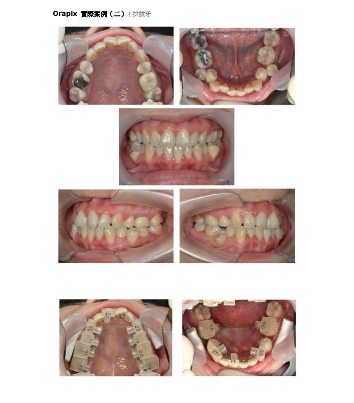 數位化隱形舌側矯正-拔牙病例