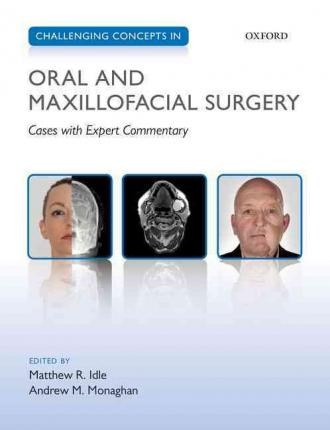 Dental Library Challenging Concepts In Oral And Maxillofacial