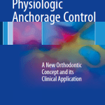 Physiologic Anchorage Control : A New Orthodontic Concept and its Clinical Application