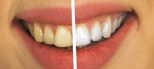 Bildergebnis für Teeth Whitening Kit Zahnbleaching Gel und Kaltlichtregler, Professionelle Zahnaufhellung Set – home bleaching für weisse Zähne