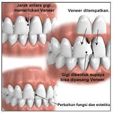Veneer gigi: Macam, Prosedur, Kelebihan Dan Kekurangannya