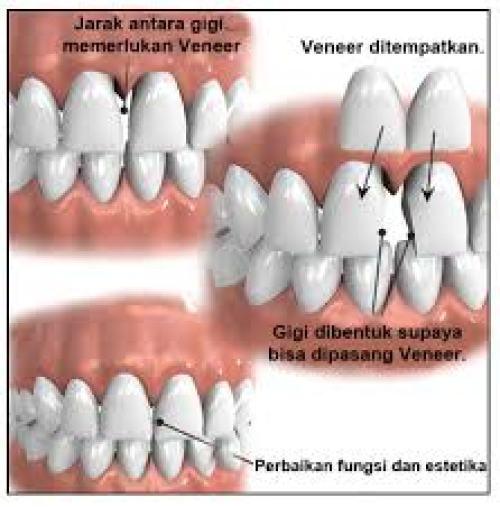 image from http://www.shinysmiledentalclinic.com