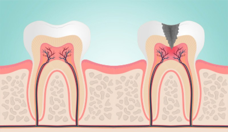 apa penyebab gigi sensitif