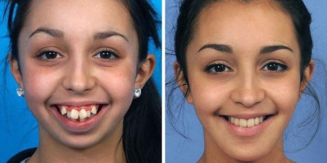 Ellie Jones : Operasi Rahang Dan Gigi Membuatku Menjadi Diri Sendiri