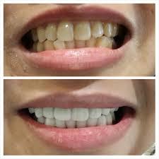 Ada-Ada Saja Putihkan Gigi dengan Kutek, Bahayanya Bikin Cepat Retak & Patah