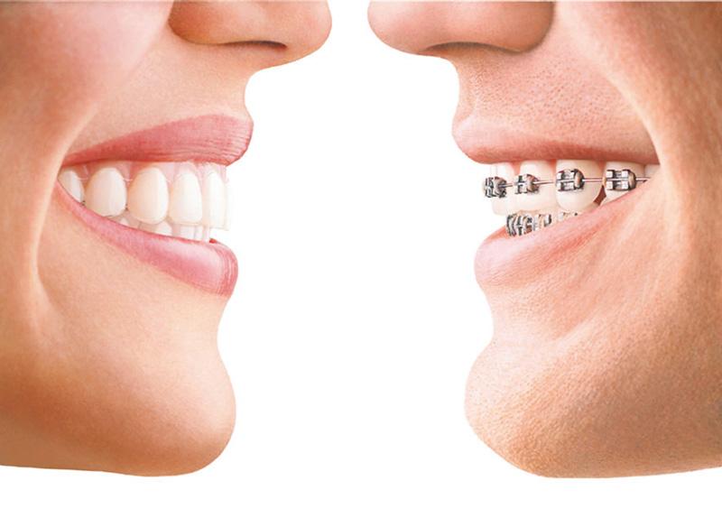 "Mitos Seputar Behel #3 ""Pasang Behel Di Tukang Gigi Juga Bisa Rata Kok Giginya"""