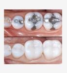 Kapan Gigi Sebaiknya Ditambal?