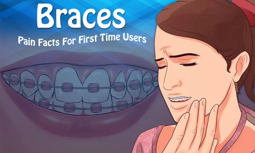Bolehkah Makan Obat Saat Sakit Gigi Karena Pakai Behel?