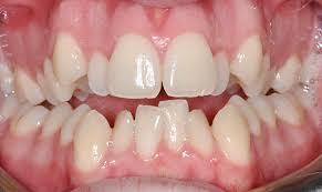 Bisa Kok Pakai Behel Tanpa Cabut Gigi