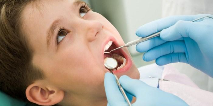 Pencabutan Gigi Bungsu Dengan Operasi Odontektomi Oleh Dokter Gigi