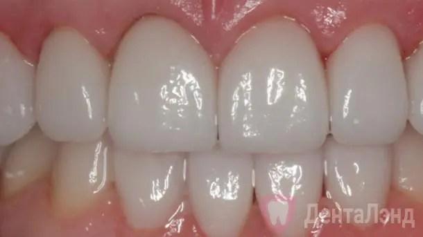 After- Голливудская улыбка с использованием керамических виниров