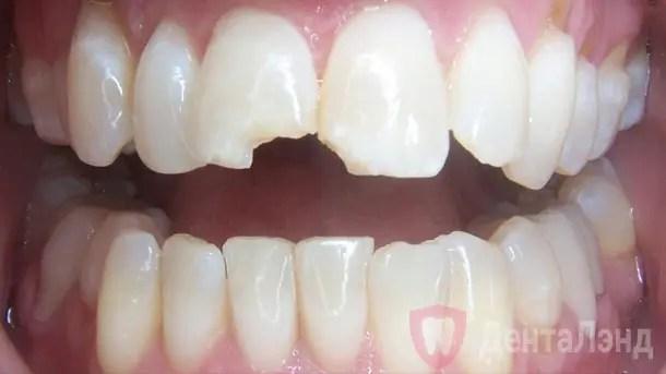 After-Композитная реставрация переднего зуба