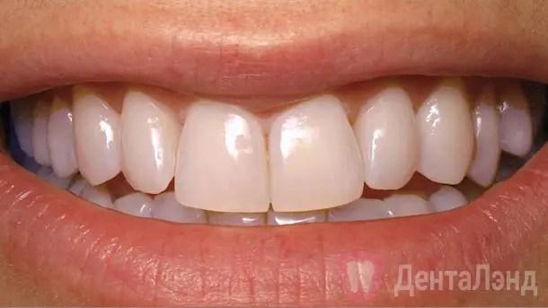 After-Отбеливание зубов методом ZOOM