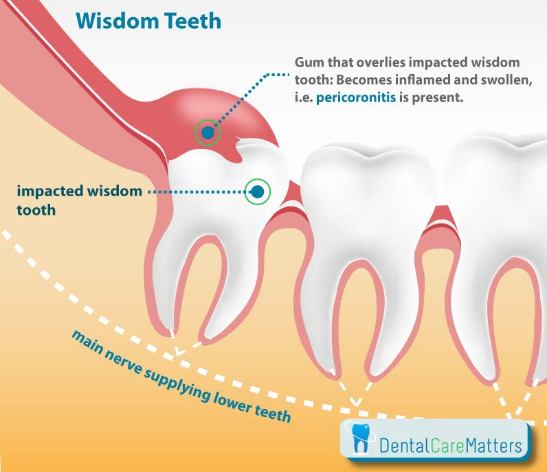 """Graphic showing the cause of wisdom teeth pain i.e. pericoronitis"""