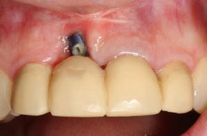 Dental İmplant Failure