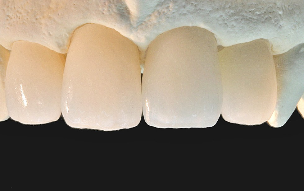 WP dental contours