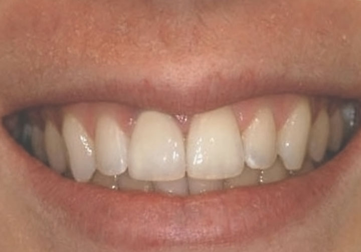eMax central incisor # 8