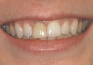 Central Incisor 8 before
