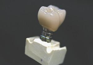 Custom Cast Abutment Crown 30
