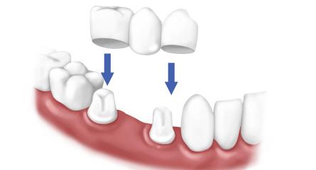 dental-bridge (1)