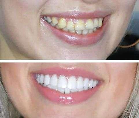 Виниры на зубы - что это такое, цены, виды, отзывы, фото ...