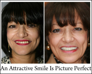 An Attractive Smile Is Picture Perfect