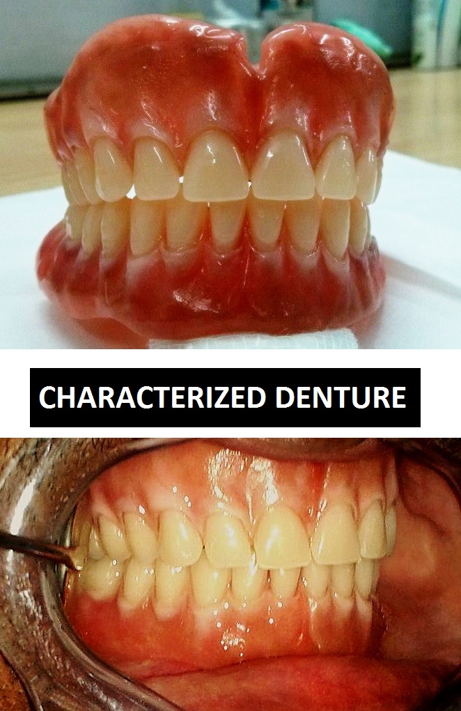 Chaaracterized Denture