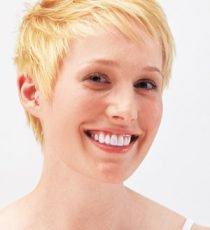efekt po wybielaniu zębów - biały uśmiech