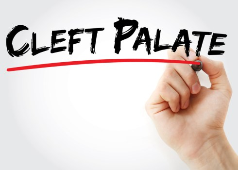 Is Cleft Lip And Cleft Palate Affecting You Or Your Loved Ones' Lives?