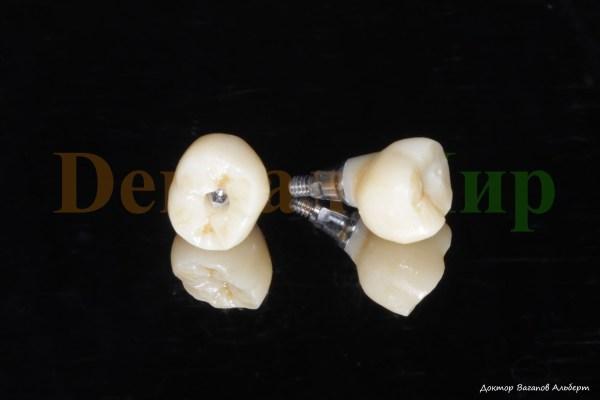Винтовая фиксация на имплантат. 3D проектирование. Фото ...