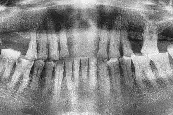 cancer-de-la-cavidad-oral  Cáncer de la Cavidad Oral cancer de la cavidad oral B  Poster cancer de la cavidad oral B