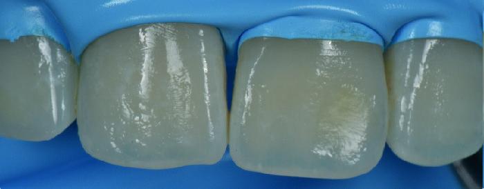 caso clinico de producto icon  Alternativa Microinvasiva, Tratamiento estético para Manchas Blancas 2 08