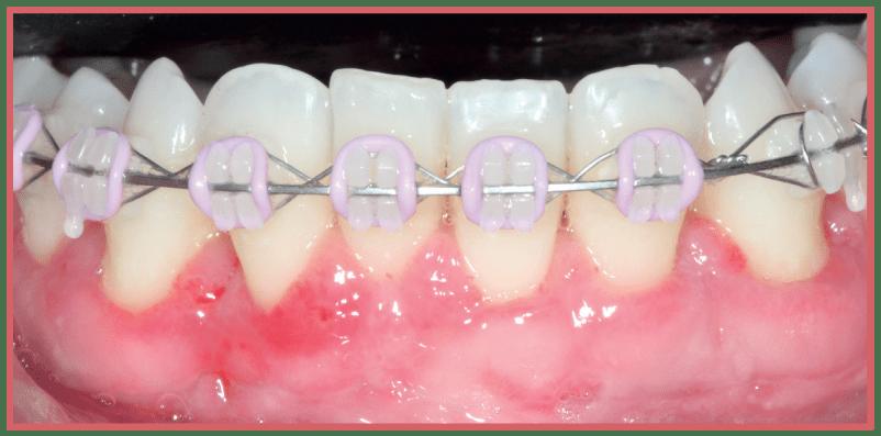 Injerto gingivial libre en tratamiento multidisciplinario CasoClinico 4